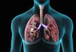 New Mexico Department of Health, Project ECHO Report Decline in Tuberculosis